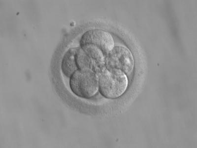 Property claims have frequently been made in respect of human embryos and other reproductive materials, with different results.
